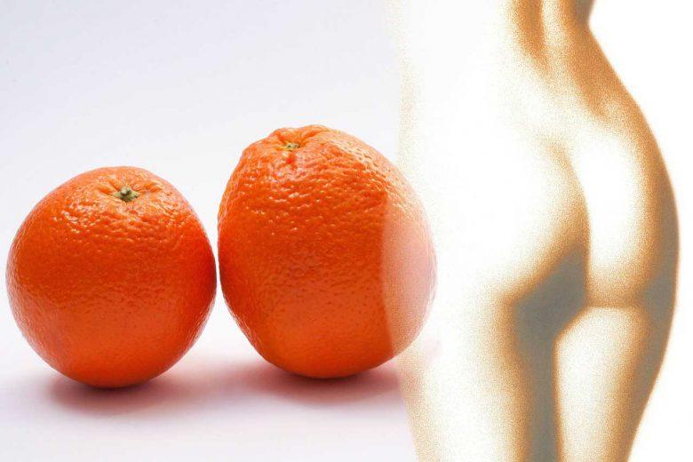 Bindegewebsschwäche bekämpfen - So gelangen Sie zur straffen Haut