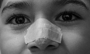 Borkenflechte Ursachen - Die Behandlung an der Nase kann sich etwas verlängern