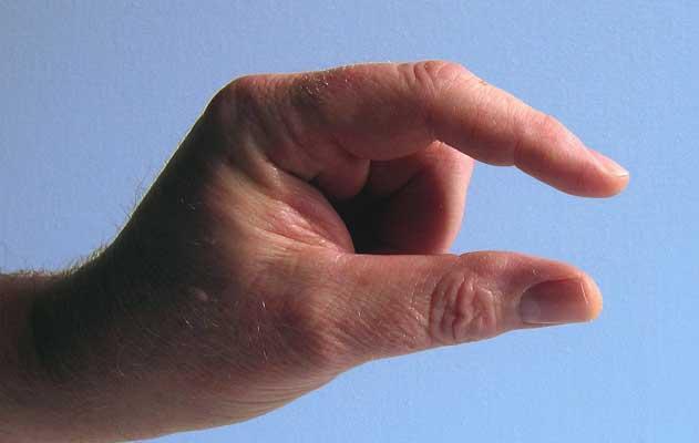 Psoriasis Arthritis Bilder - Psoriasis Arthritis Symptome wie dicke Finger