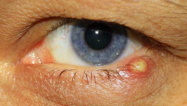 Pickel am Augenlid - Häufig handelt es sich um ein Gerstenkorn