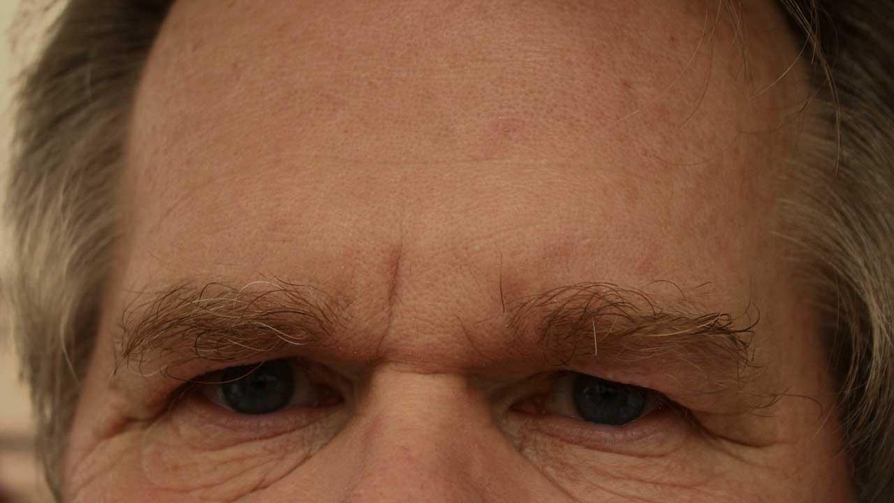 Pickel auf der Stirn - Damit das störende Makel schnell verschwindet