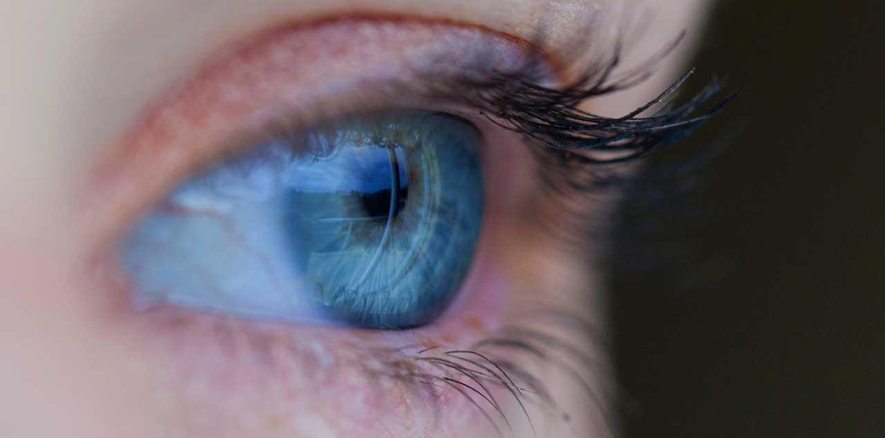 Pickel im Augen - was tun bei einem Hordeolum?