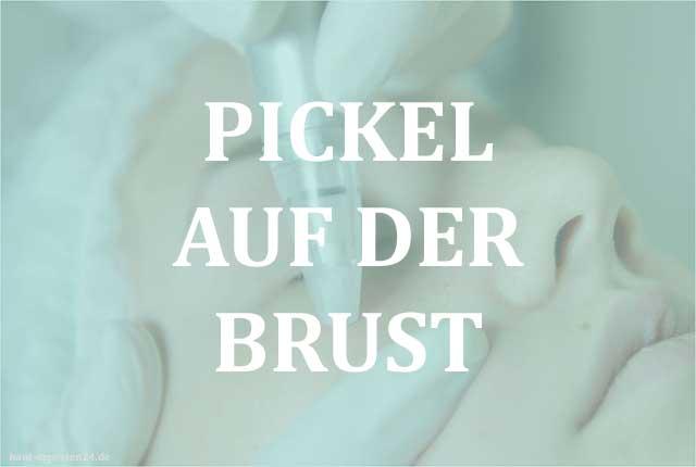 Pickel auf der Brust – Die Pustel ganz leicht entfernen.
