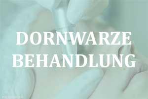 Dornwarze Behandlung - Dornwarze Wurzel ziehen als einfache Therapie?