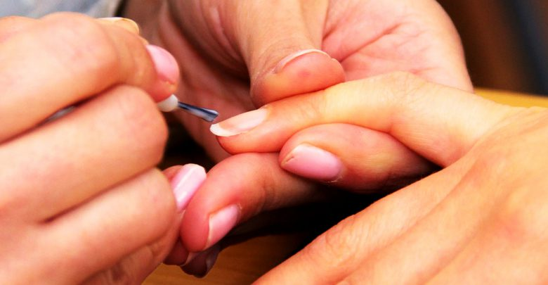 Nagelpilz Behandlung mit Nagellack.